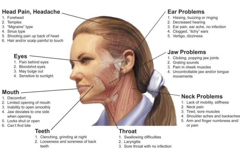 headache signs