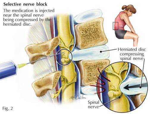 Photo of Nerve Root Block