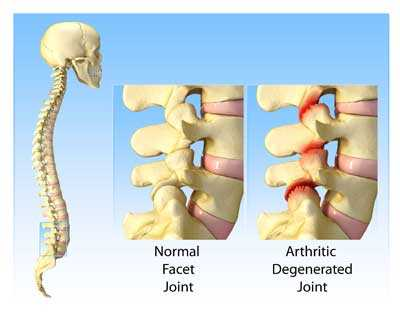 normal facet joint arthritic degenerated joint