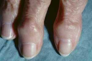 osteoarthritic