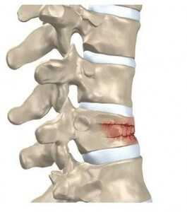 osteoporotic fracture