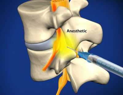 sacral-epidural-anesthetic