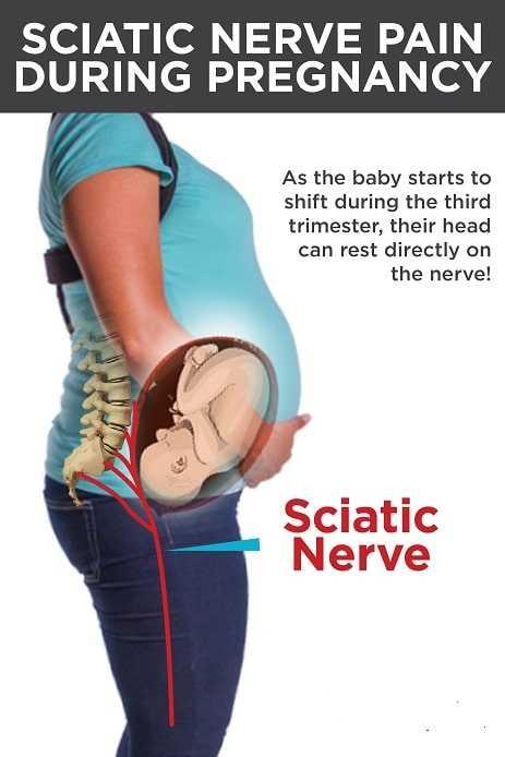 sciatica nerve pain during pregnancy