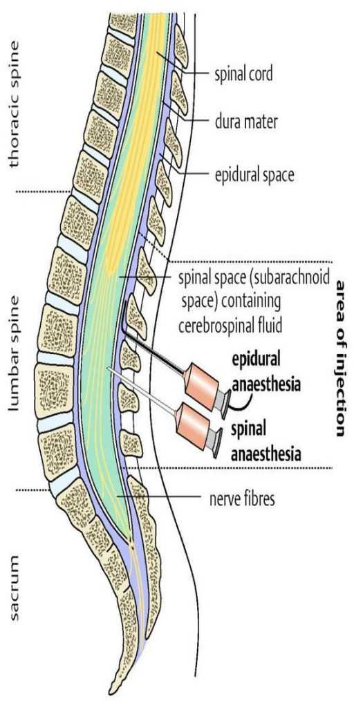 spinal injection for sciatica