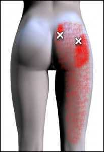 the diagnosis of piriformis syndrome