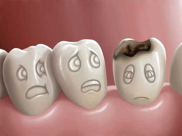 Photo of Causes Of Tooth Pain