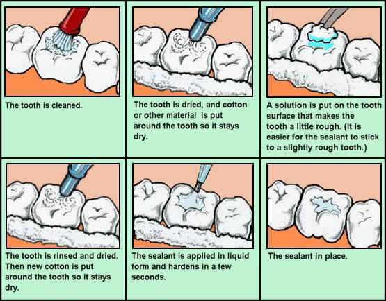 treatments for tooth pain