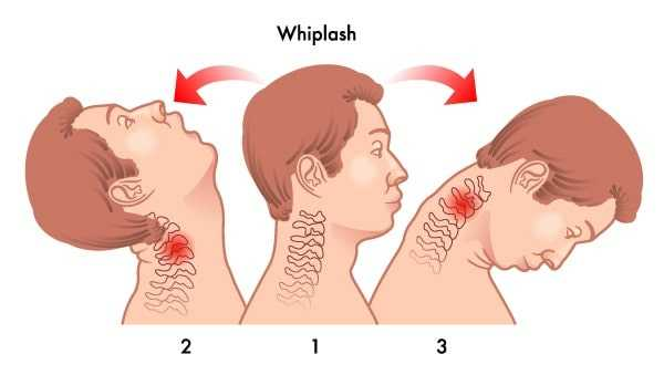 whiplash diagram