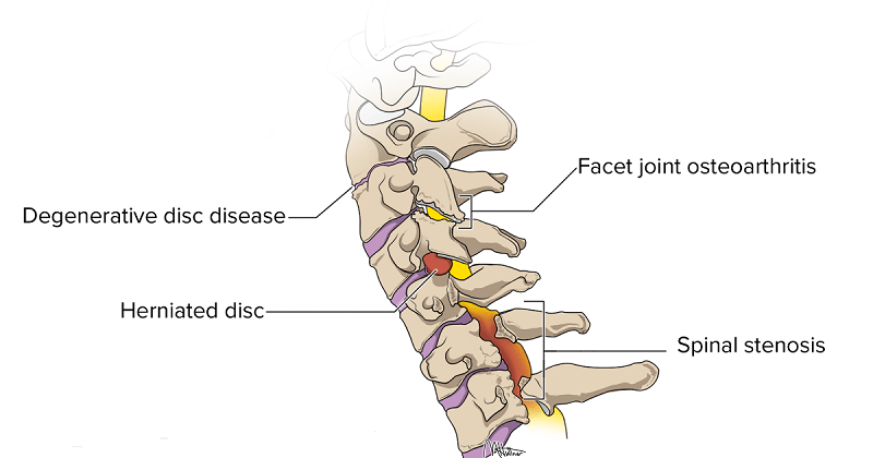 ARE THERE ANY DIFFERENT SYMPTOMS OR SIGNS IN SPINAL STENOSIS FROM OTHER SPINAL DISORDERS?