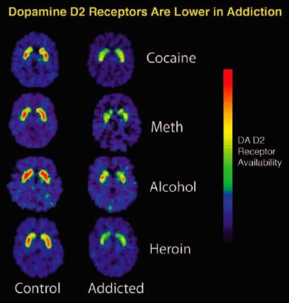 Addiction Brain Scans Cocaine Meth Alcohol Heroin