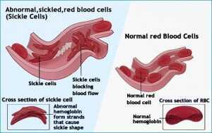 Anatomy of Sickle Cell Anemia