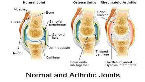 In RA, a particular area of the joint called the synovial membrane becomes the point of immune attack. As the membrane is attacked it causes the joint to swell, hurt, and fill with fluid. In most occurrences the attack subsides spontaneously leaving the joint injured.