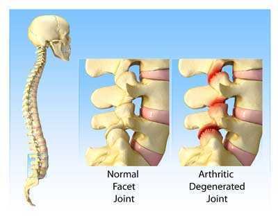 Lumbar Degenerative Joint Disease