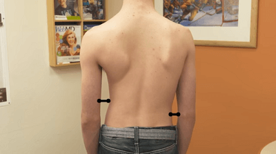 effects of scoliosis on the spine