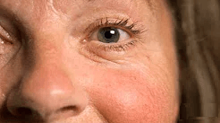 Sjogren's Syndrome woman