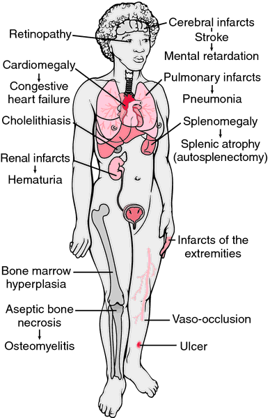 The Mechanism for the Chronic Pain of Sickle Cell Anemia
