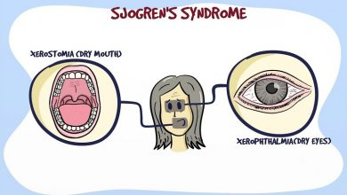The Mysterious Sjogren's Syndrome