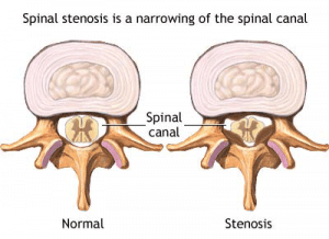 What Is Spinal Stenosis?
