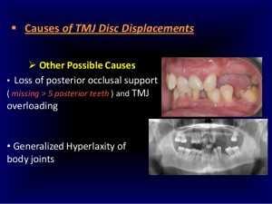 causes of Temporomandibular Joint Syndrome disc displacement