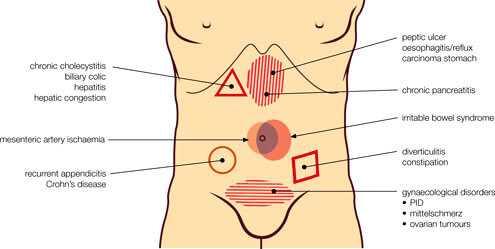 chronic abdominal pain anatomy
