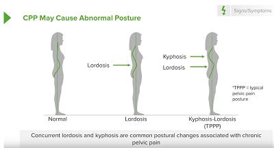 chronic pelvis pain causes