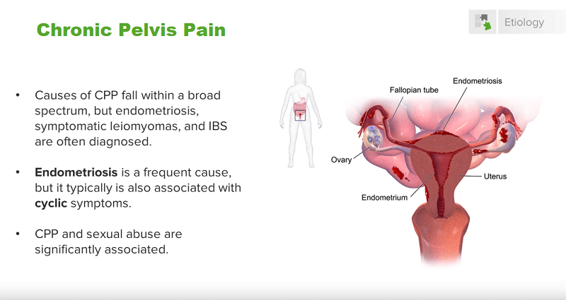 Photo of Chronic Pelvic Pain Syndrome In Women