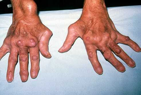 joint swelling rhuematoid_arthritis