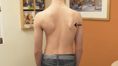 pain on the spine of scoliosis