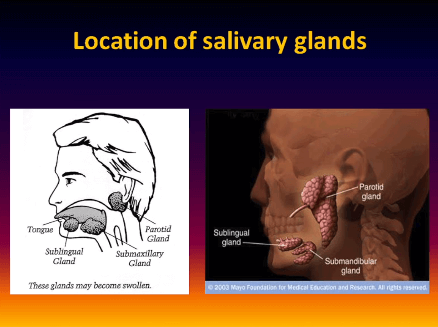 Photo of Sjogrens Salivary Gland