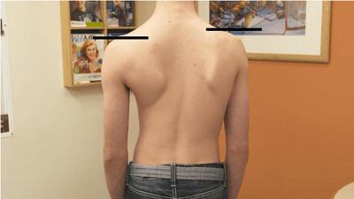 scoliosis spine problem