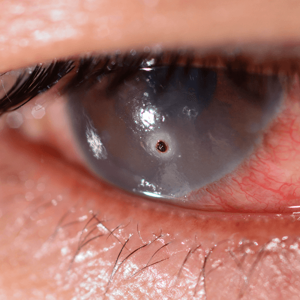 A Foreign Body in the eye