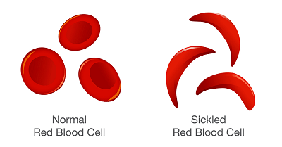 Photo of About Sickle Cell Disease