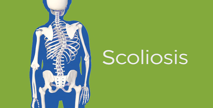 Photo of All About Scoliosis