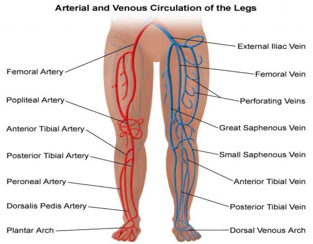 Photo of Arterial Blockage in Legs