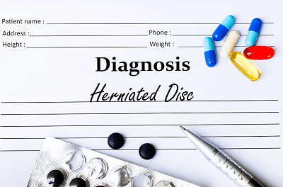Photo of Exploring Your Treatment Options for Your Herniated Disc
