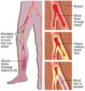 What are the Risk Factors for Developing Arterial Blockage of the Legs?