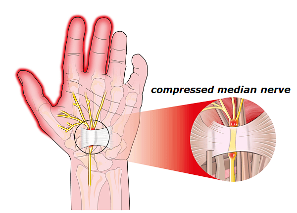 carpal tunnel median nerve
