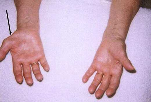carpal tunnel swelling