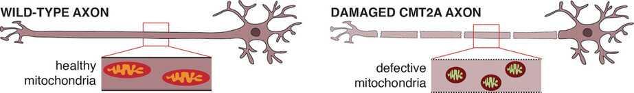 defective mitochondria