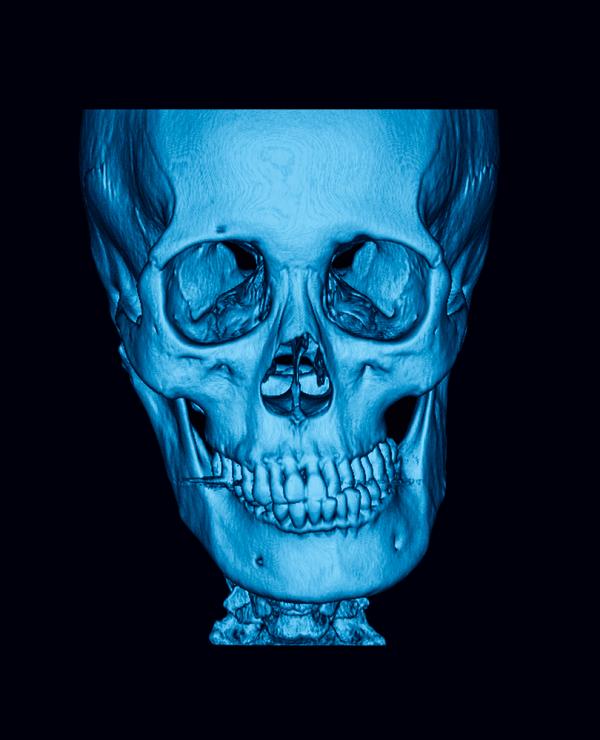dislocation of left temporomandibular joint TMJ