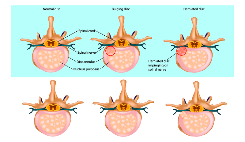 herniated disc symtomps