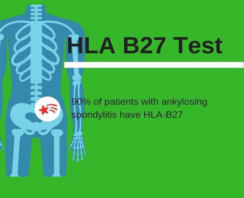hla b27 test