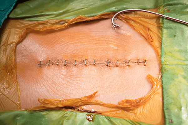 surgical wound and drain from laminectomy