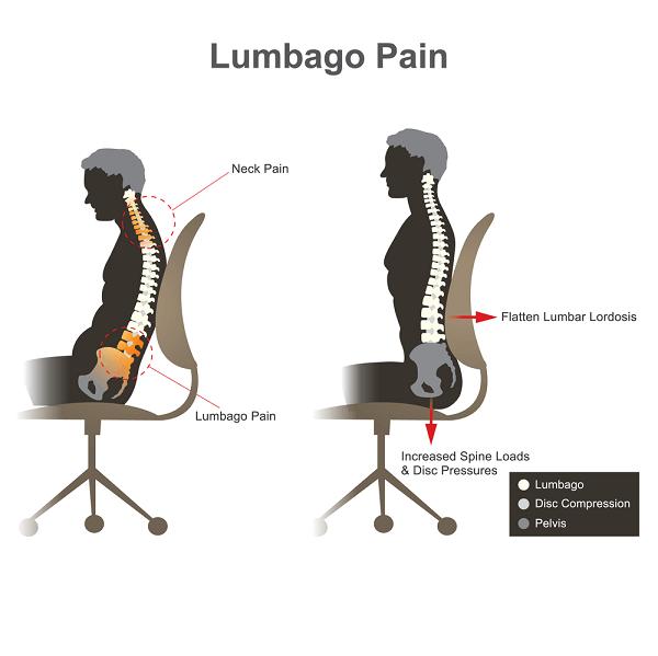 Lumbago Pain.