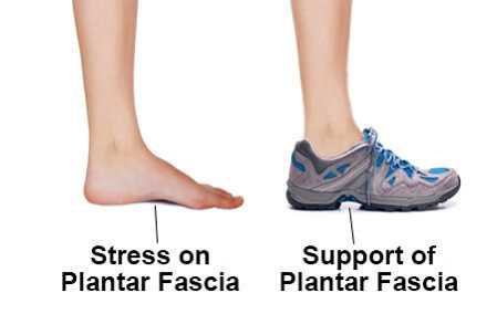 shoe for plantar fasciitis