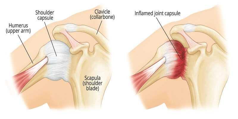 shoulder Capsulitis