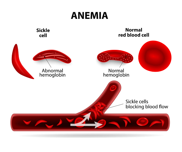 sickle cell abnormal hemoglobin