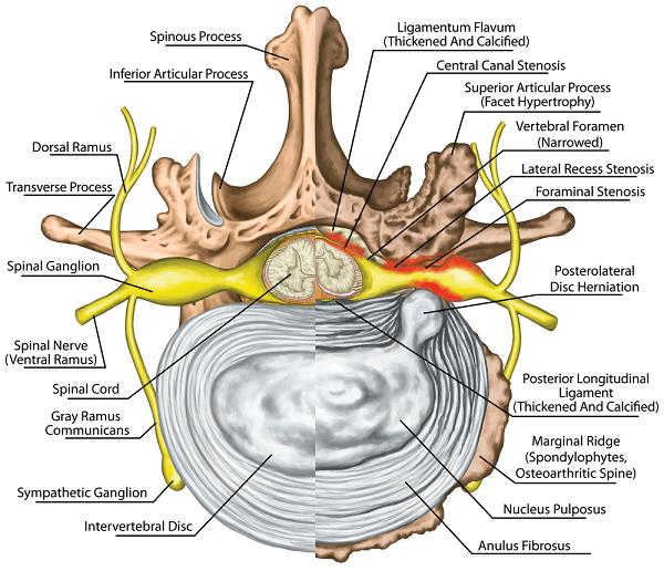 spinal stenosis anatomy