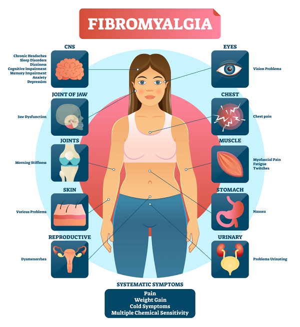systematic symptoms of fibromyalgia