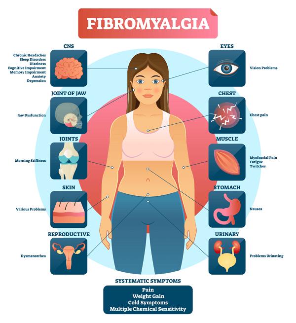 systematic symptoms of fibromyalgia